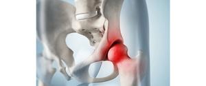 股関節・内転筋の痛みの原因と治療方法とは?自分でできる予防方法も紹介!