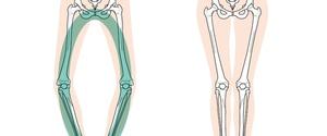 【専門家解説】O脚を治すストレッチ4選!寝ながら、立ってできるストレッチ方法!
